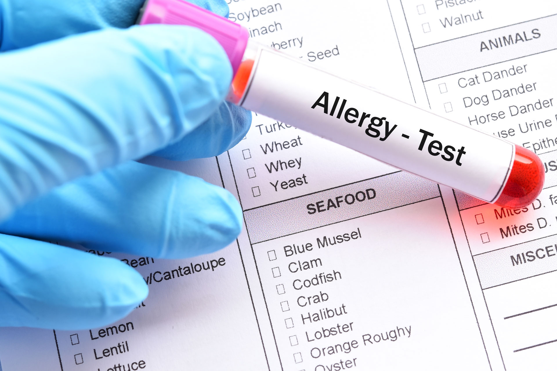Kansas City Allergy & Asthma - Testing