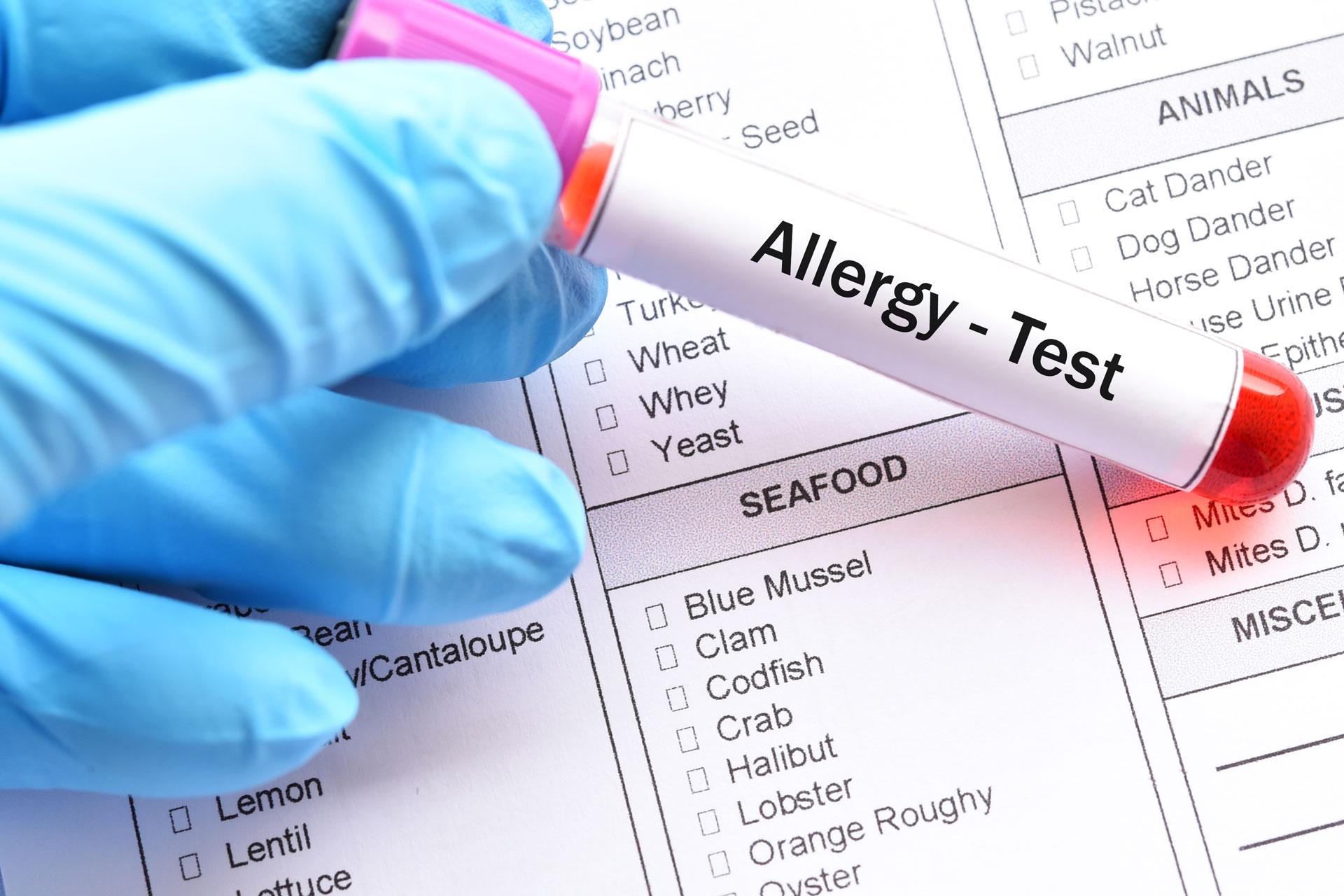 Kansas City Allergy & Asthma - Testing